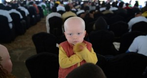 Albinos Are On Threat. Politicians Believe Paying Witch Doctors To Bring Luck
