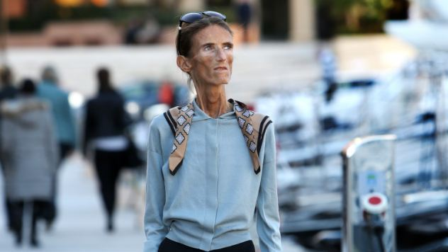Image Valeria-Levitin-is-a-walking-skeleton-after-years-of-anorexia-reduced-her-weight-to-just-four-stone.jpg
