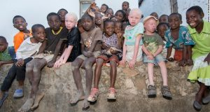 People With Albinism