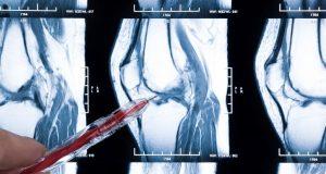 Arthritis, Rheumatoid Arthritis